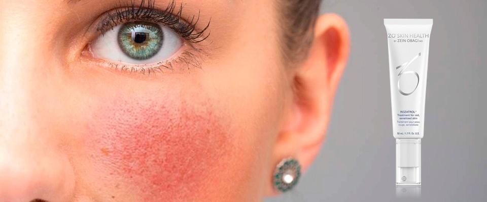 Что такое купероз и каким образом можно эффективно бороться с этим заболеванием